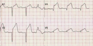 A sample EKG tracing showing a ST-elevation Myocardial Infarct